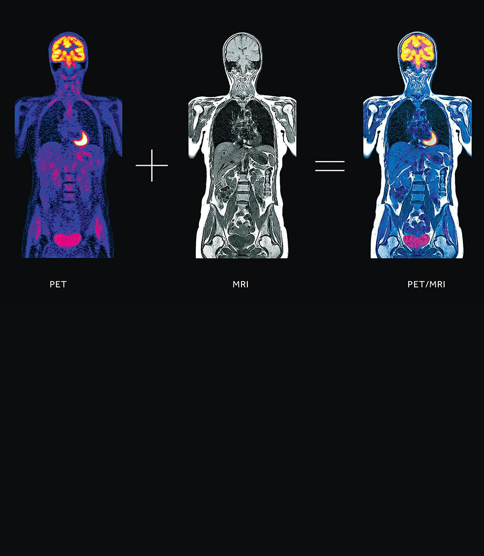 Stony Brook Medicine Imaging Services